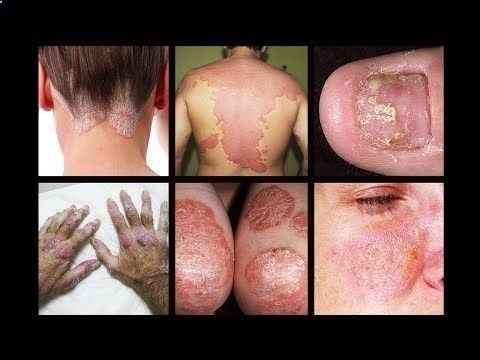 Remedies for Psoriasis - Psoriasis Revolution - Psoriasis Revolution - How To Heal Psoriasis Naturally | Scalp Psoriasis Home Remedies | Scalp Psoriasis Treatment - CLICK HERE for The No. 1 Itchy Scalp, Dandruff, Dry Flaky Sore Scalp, Scalp Psoriasis Book! #dandruff #scalp #psoriasis VISIT: ►► ◄◄ How To Heal Psoriasis Naturally – Scalp Psoriasis Home Remedies – Scalp Psoriasis Treatment Psoriasis is a common skin disease that affects the life... - #Dandruff - REAL PEOPLE. REAL RESULTS ...