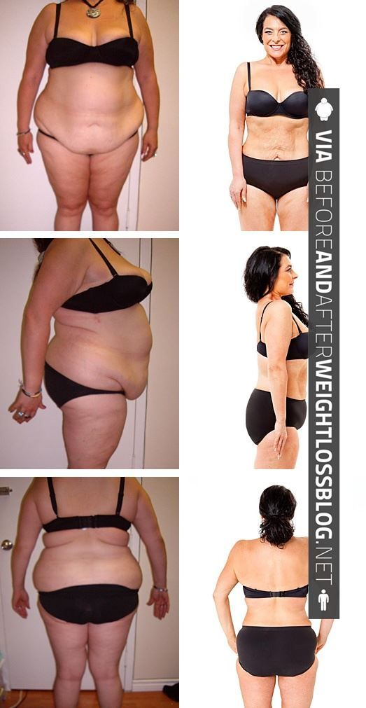 Basically, I find any weight loss inspirational, but large weight loss is my goal so these pics show me it can be done!