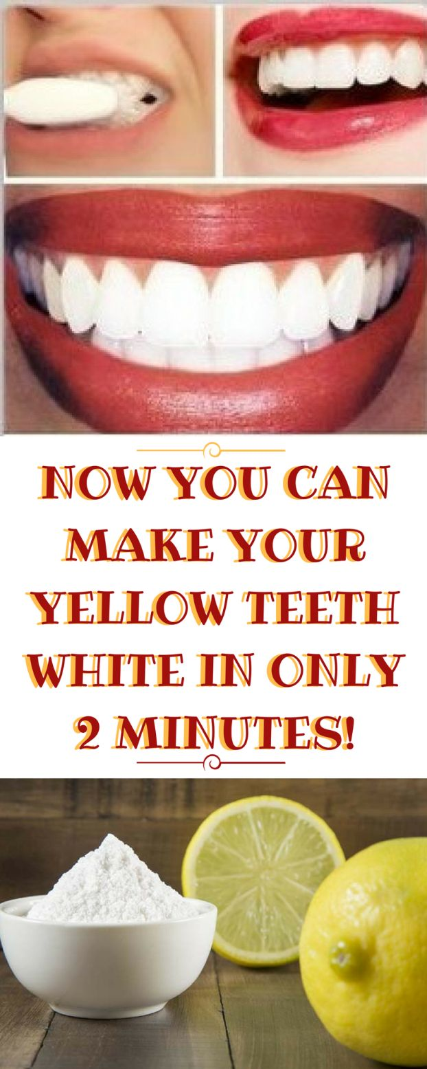 Best 25 White Teeth Ideas Only On Pinterest White Teeth