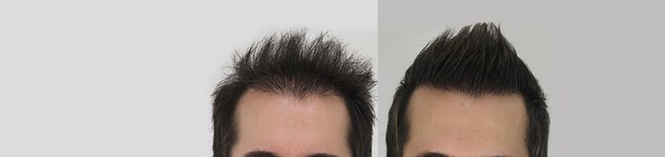 Dermalife provides Best Hair transplant and restoration services in Delhi.Dr.Gaurav Garg, hair transplant surgeon in south delhi offers hair services for men and women with hair loss.click us:-http://www.dermalife.co.in/Hair-transplant-in-Delhi