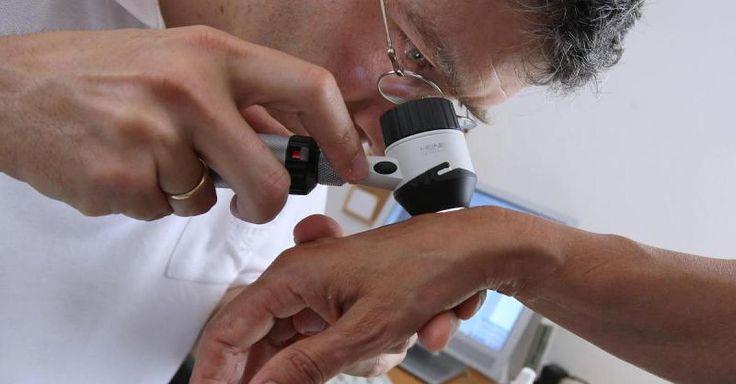 Enorm verbesserte Therapien: Hautkrebs-Patienten leben heute länger als vor fünf Jahren - Dirk Schadendorf