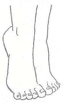 ESPOLÓN CALCÁNEO QUE ES: Formaciónosea o crecimiento oseo queaparece o se forma en el calcáneo (huesodeltalón) de f...