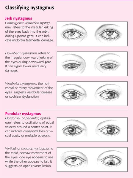 nystagmus -the rhythmical, involuntary movement of one or both eyes. It is a physical sign (not a disease) of utmost importance because it can signal the presence of neurological and other eye conditions.