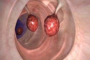 Les médecins sont en état de choc: cette huile peut tuer jusqu'à 93% de cellules tumorales du cancer du côlon en 2 jours seulement!