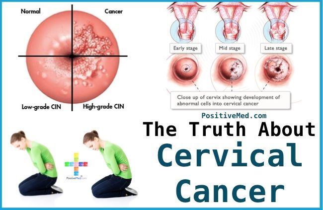 The Truth About Cervical CancerPositiveMed | Stay Healthy. Live Happy