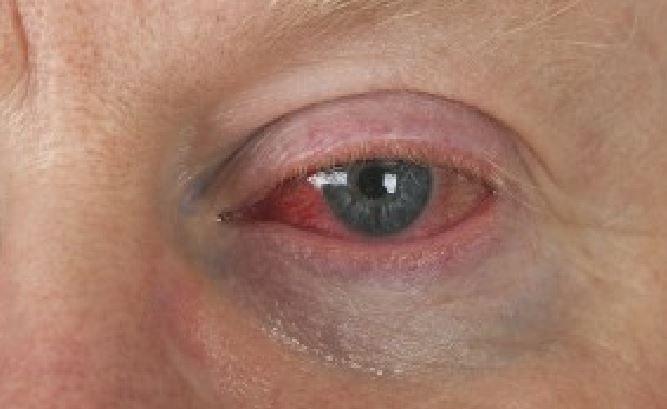 eye floaters and masturbation