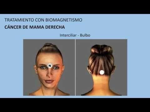 Cáncer de mama derecha  Tratamiento con biomagnetismo #5 - YouTube