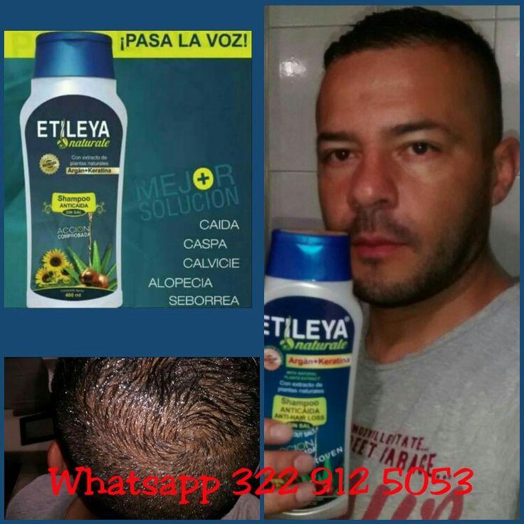 Shampoo ETILEYA NATURALE Anticaida  La mejor solución para la Alopecia Seborrea Caspa  Has tú pedido al Whatsapp 322 912 5053 Bogotá Colombia