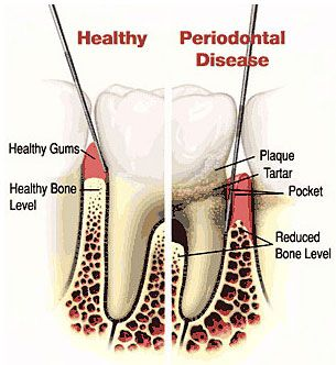 Dr. Khansari is certified for use of advanced surgical techniques for placement of Dental Implants Specialists in Poway. We provide San Diego Dental Implant.