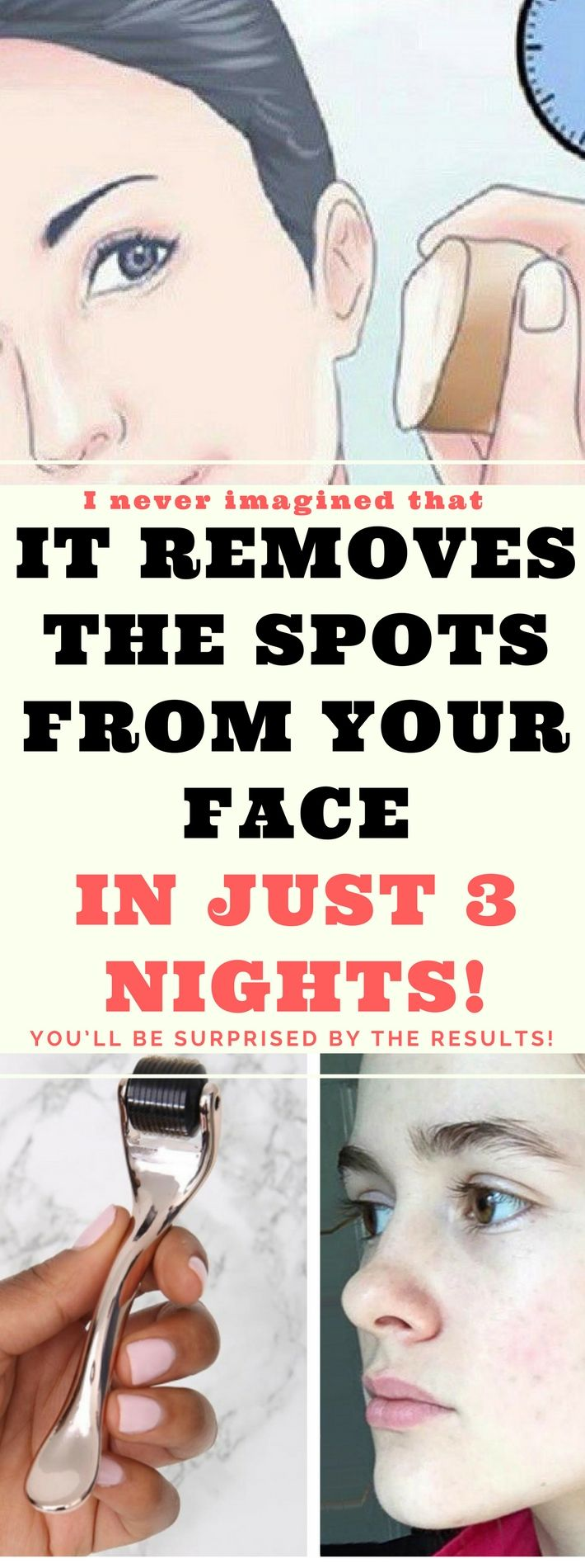 IT REMOVES THE SPOTS FROM YOUR FACE IN JUST 3 NIGHTS.. Need to know!!!!!