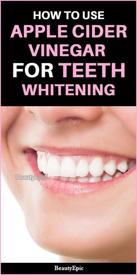 Tall Teeth Whitening Cost #oralcareset #TeethWhite…