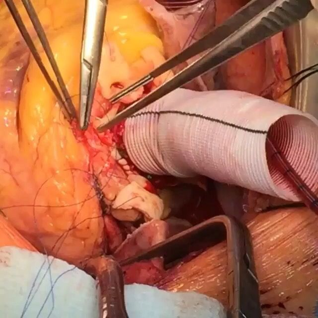 Correção de Aneurisma de Aorta!  Troca de Aorta Ascendente por Tubo de Dacron com uma Prótese Valvar Cardíaca Mecânica Acoplada!   Neste Filme Passando os Pontos no Anel Aórtico e no Tubo de Dacron com uma Prótese Mecânica para Evitar Sangramento Posterior!  Paciente Portador de Hipertensão Mal Controlada!   Prevenção Sempre Será Melhor Alternativa!   #DoutorLima  #CirurgiaCardiovascular  #CuidedoCoracao
