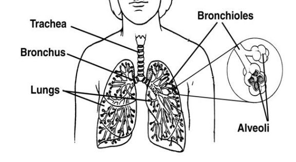 best 25  squamous cell carcinoma lung ideas on pinterest