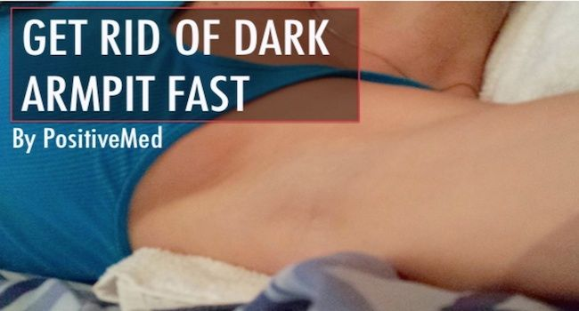 Removal of dark spots under your arms