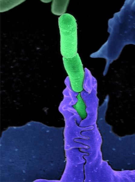 Anthrax bacteria being swallowed by an immune system cell.