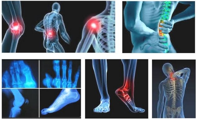 Resep Tradisional Mengobati Encok dan Sakit Pinggang dan Cara Mengetahui Gelaja dan Pencegahannya - http://www.njamu.com/resep-tradisional-mengobati-encok-dan-sakit-pinggang-dan-cara-mengetahui-gelaja-dan-pencegahannya/