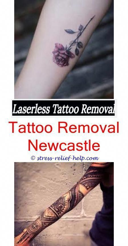 Does laser removal hurt tattoo.Tattoo removal nashville tn.How to ...