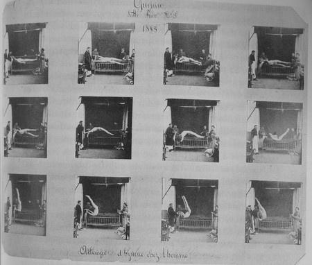 Albert LONDE - Guinin. Attaque d'hystérie chez l'homme (1885) #medecine #photo