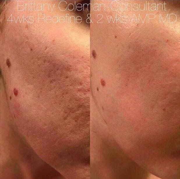 Acne Scars be gone! Look at these 4 week results:  ✔1 month using our REDEFINE regimen ✔2 weeks of using our Amp MD System (micro-exfoliating roller + Night Renewing Serum with retinol and peptides)  No laser resurfacing, harsh chemical peels or costly similar treatments.  The Amp MD can be used again and again in the privacy of your own home!  Message me if you or someone you know suffers from acne scarring.