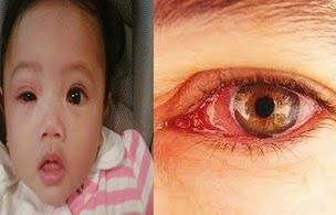 """Conjunctivitis (Red Eye) Treatment & Management  Know """"conjunctivitis""""  Conjunctivitis (Red Eye) Treatment & ManagementConjunctivitis or better known as red eye disease, is inflammation and infection of the conjunctiva transmitted (ie clear membrane covering the white part of the eye and the inner surface of the eyelid). Conjunctivitis is called the """"red-eye disease"""" because of the white part of the eyes turn red or pink."""