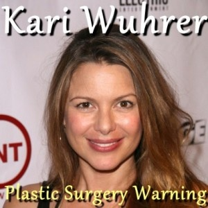 Actress Kari Wuhrer explained why she decided to remove her breast implants and how she maintains positive body image in Hollywood on The Doctors.