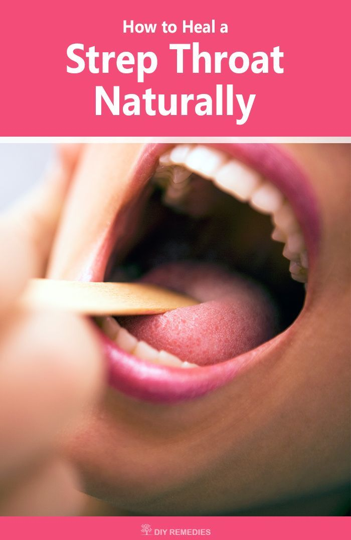 How to Heal a Strep Throat Naturally Home Remedies for Strep Throat:  Here are the best natural remedies that speed up the recovery process by alleviating the pain and discomfort caused by strep throat. #StrepThroat #Naturally