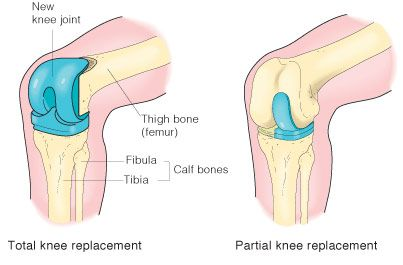 Knee replacement surgeries come as a huge boon for patients suffering from degenerative bone diseases. Though there are multiple reasons such as injury, obesity and developmental abnormalities to opt for knee surgeries, arthritis is the most common one.