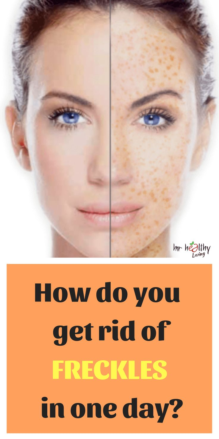 how to remove freckles by diet