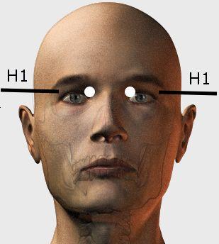 A szemzug energiapontjának kezelése még 24 betegség esetén hatásos - POZITÍV GONDOLATOK