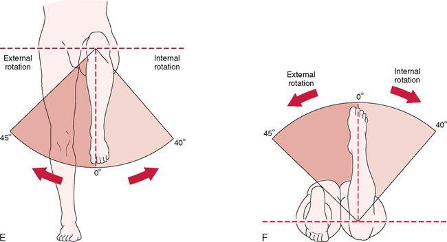 27++ How to fix hip external rotation ideas