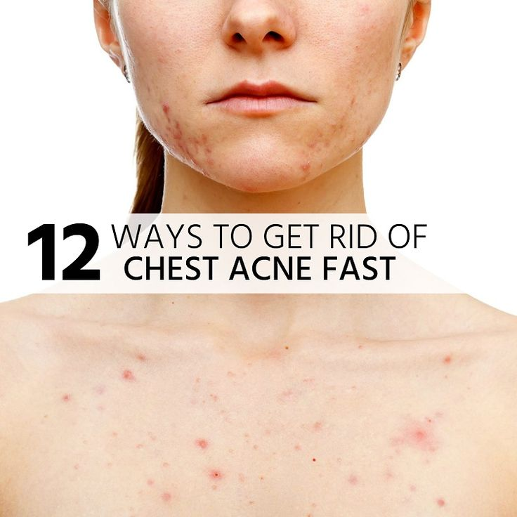 Easiest Way To Get Rid Of Pimples Overnight
