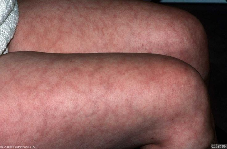 Livedo reticularis in Lupus, related: arthritis, fibromyalgia & Sjögren's syndrome.  I never knew this was related. I've always had it.