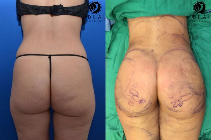 Before and immediate after body sculpting and fat transfer to the buttocks.  Check out our snapchat @drjustinyovino for the whole procedure and the lip aug. #instabooty #idealfaceandbody 310-887-9999 www.idealfaceandbody.com