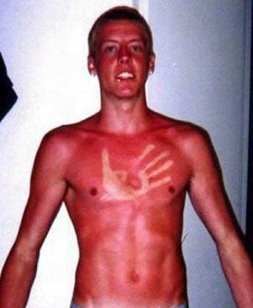 The Worst Sunburns Ever