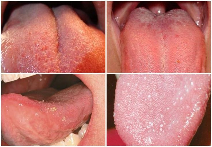 Swollen taste buds. A detailed overview of causes, symptoms and remedies.