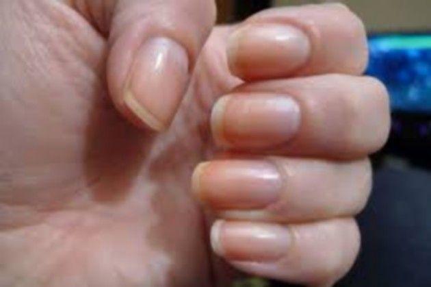 Nails and Health, toenail fungus treatment,treatment for toenail fungus,ingrown toenail treatment,nail fungus treatment,best nail fungus treatment