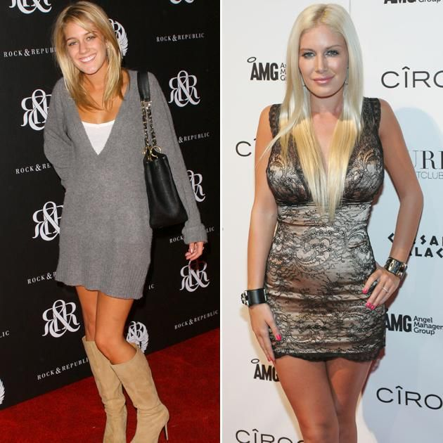 Plastic Surgery Heidi Montag Courteney Cox And More: 25+ Best Ideas About Heidi Montag Plastic Surgery On