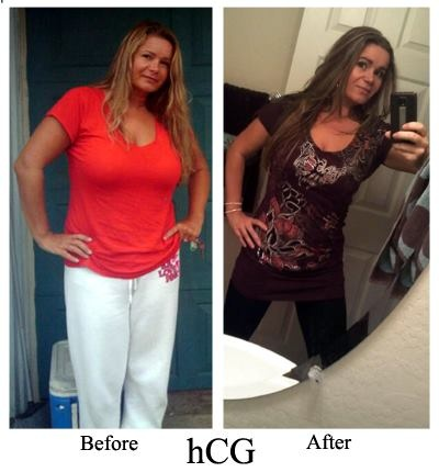 HOT stuff ! | Before and After Pics - HCG Diet 800 Calorie ...