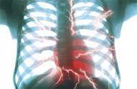 Боли в области сердца - Кардиология