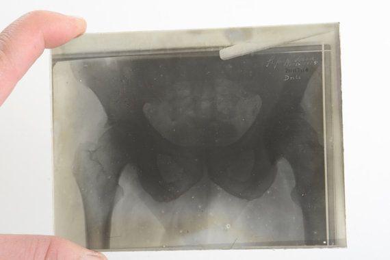 Fotografía médica antigua de radiografía por Brocantebcn en Etsy #medicalpictures #oddities #humananatomy