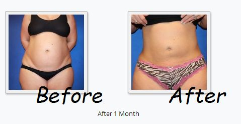 SMARTLipo can make a huge difference! To see how big of a difference it can make…