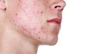 Does Masturbation Cause Acne