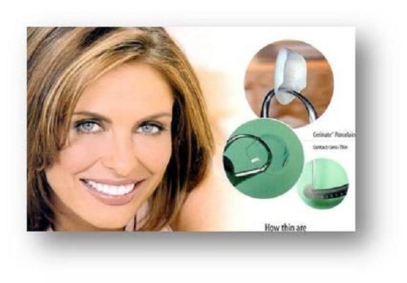 Best 25  Dental veneers ideas on Pinterest  Porcelain