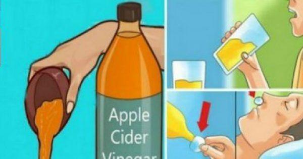 Υγεία - Έχετε διαβάσει πιθανώς πολλά για τα ατελείωτα οφέλη που προσφέρει το μηλόξυδο. Ωστόσο, σίγουρα δεν τα ξέρετε όλα για αυτό. Εμείς, ψάξαμε και βρήκαμε για εσ