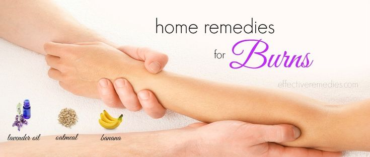 We is going to introduce to you top 20 natural home remedies for burns on skin including hand & face so that you can minimize pain at your own home.
