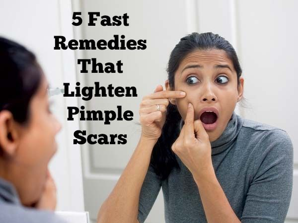 Take a look at these 5 kitchen ingredients that lightens pimple scars.