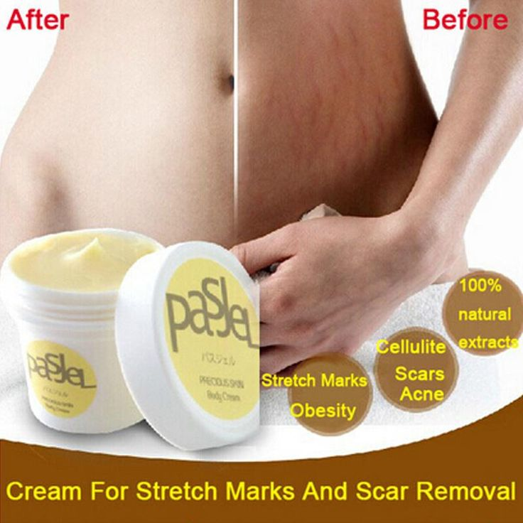 1PC Thailand Precious Skin Body Cream Stretch Marks Remover and Scar Removal Powerful Postpartum Obesity Pregnancy Cream RP1-5