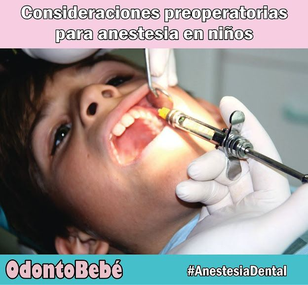 anestesia-dental