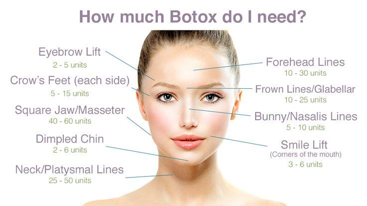 How much Botox do I need? drselene.com