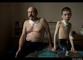 Chernobyl: 25 Years After The Nuclear Disaster.  Suffering from thyroid cancer, Oleg S., 54, and Dima B., 13, receive care at a thyroid hospital in Belarus, where surgery is performed on a daily basis. As a liquidator, Oleg was exposed to extreme levels of radiation when razing contaminated houses near the destroyed reactor. This was his third thyroid operation.   Photographs Gerd Ludwig/INSTITUTE